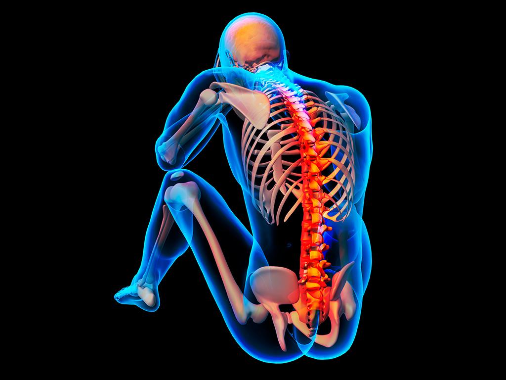 NST Integrazione spinale
