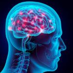Riabilitazione neurologica